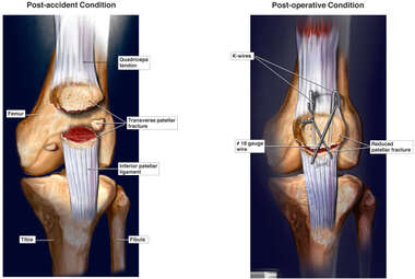 Left Patellar Fracture with Surgical Fixation