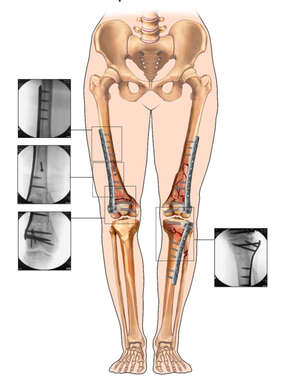 Female Lower Extremity Fixation and Post-operative X-Ray Films