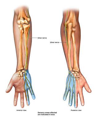 Ulnar Nerve Supply to the Right Arm, Wrist and Hand