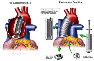 Additional Pathologies and Surgical Repairs to the Heart and Aorta