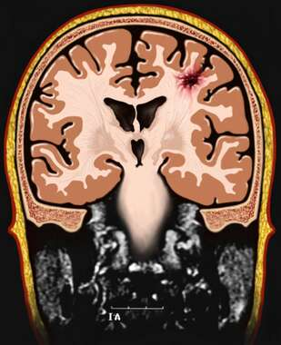 Brain with Cerebrum Trauma (MRI), Anterior Cut-away View