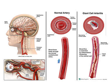 Giant Cell Arteritis of the Ophthalmic Artery