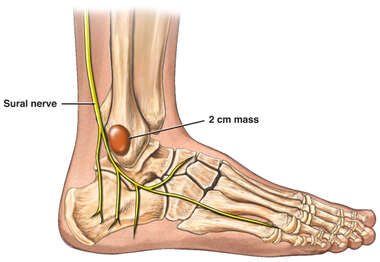 Excision of Lateral Ankle Mass with Resulting Sural Nerve Injury