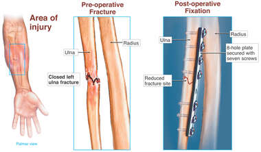 Ulnar Fracture with Surgical Fixation