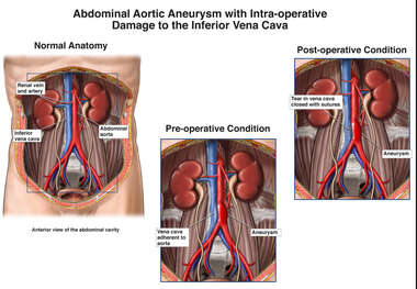 Abdominal Aortic Aneurysm with Intra-operative Damage to the Inferior Vena Cava