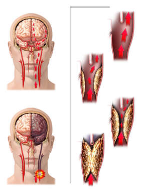 Progression of Carotid Artery Occlusion