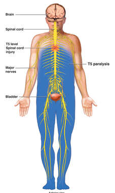 T5 Level Spinal Cord Injury