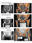 Surgical Repairs of the Pelvis