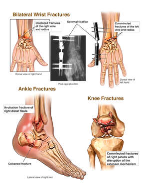 Common Auto Collision Injuries to the Wrist, Knee and Ankle