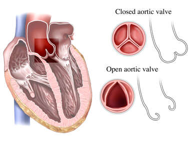 Aortic Valve: Open and Closed