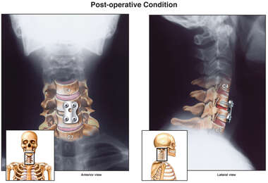 Cervical Spine Injuries with Cervical Fusion