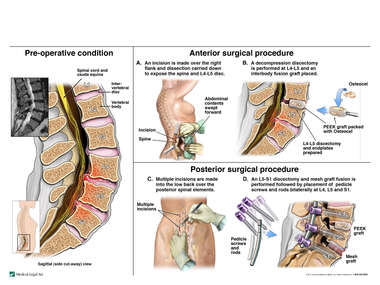 Lumbar Spine Injuries with Double Level Anterior and Posterior Lumbar Fusion Procedure