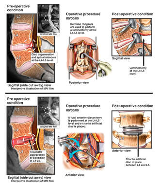Lumbar Injuries with Posterior Decompression and Anterior Fusion Surgeries