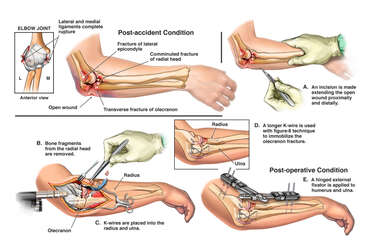 Elbow Fracture Dislocation with Internal and External Fixation
