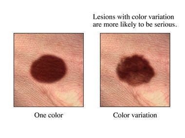 Skin Cancer Sign: Color Variation in Mole