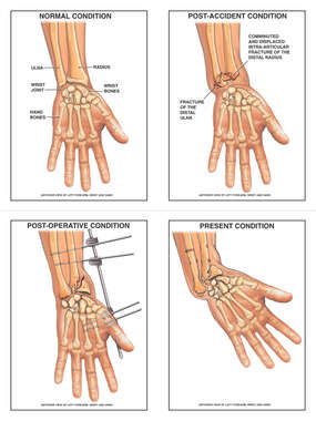 Wrist Fracture, Placement of External Fixator and Eventual Mal-alignment