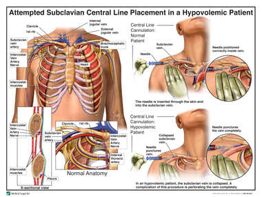 Attempted Subclavian Central Line Placement in a Hypovolemic Patient