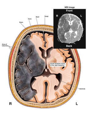 Brain Infarction