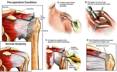 Traumatic Left Rotator Cuff Tear with Surgical Repairs