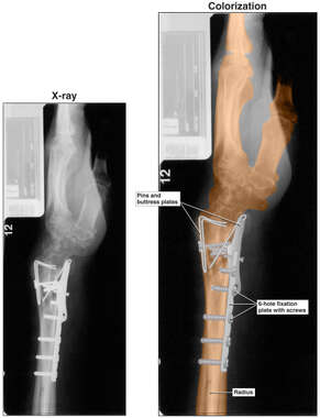 Colorized Lateral X-Ray Film with Post-operative Condition of the Wrist