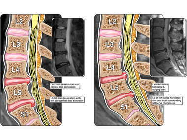 Progression of Lumbar Spine Injuries