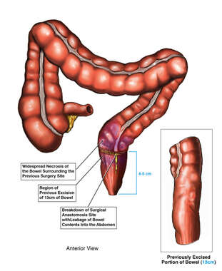 Breakdown of Surgical Anastomosis Site of the Bowel with Leakage Into the Abdomen