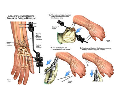 Healing Fractures of the Distal Left Wrist with Removal of Retained Hardware