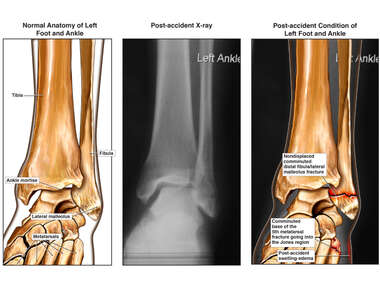 Left Foot and Ankle Injuries