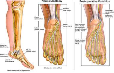 Post-operative Nerve Damage in to the Foot