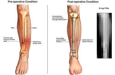 Left Lower Leg Fractures with Surgical Fixation