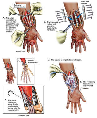 Left Arm and Hand with Surgical Repairs of Post-accident Injuries