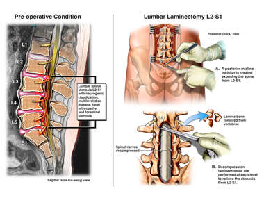 Lumbar Spinal Stenosis with Surgical Laminectomies