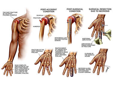 Upper Extremity Injuries with Surgery and Amputation of the Finger