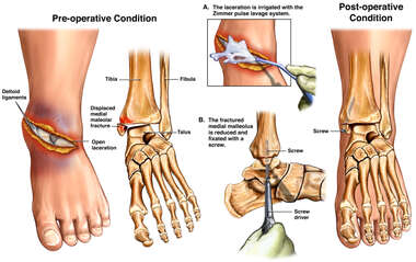 Open Ankle Fracture with Surgical Repairs