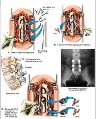 Recurrent Disc Herniation with Surgical Lumbar Fusion