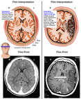 Conditions of the Brain Before and After Occlusion