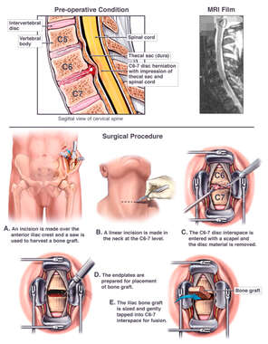 C6-7 Disc Herniation with Surgical Repair