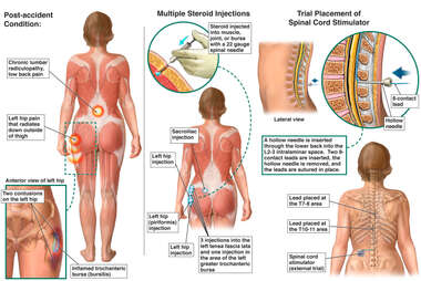 Posterior Female Figures with Post-accident Injuries and Multiple Attempts at Pain Management