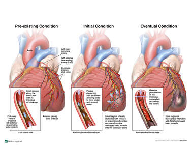 Progression of Fatal Myocardial Infarction  (Heart Attack)