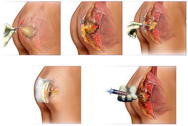 Attempted Surgical Treatment of Gluteal Abscess