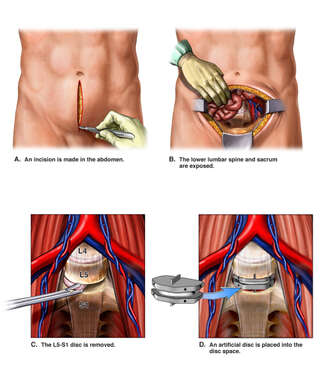 Anterior Lumbar Discectomy and Disc Replacement Surgery