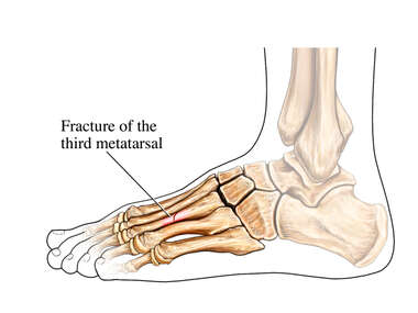 Stress Fracture of Left Third Metatarsal