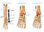 Surgical Repairs of the Right Ankle