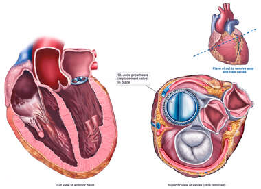 Mitral Valve Replacement