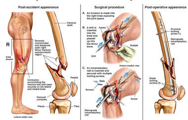 Right Distal Femur Fracture with Initial Surgical Fixation