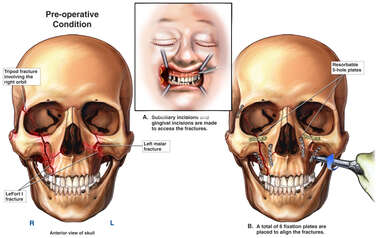 Complex Facial Fractures with Surgical Fixation