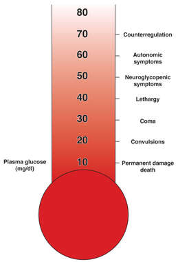 Levels of Low Blood Sugar