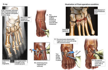 Additional Left Foot Complications and Surgical Repairs