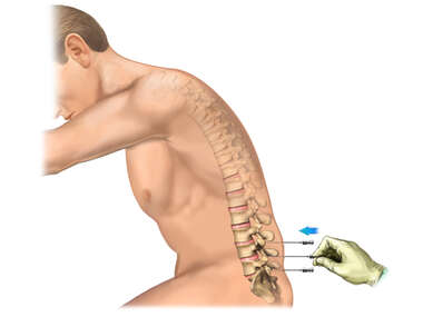 Needle Insertion into the Lower Back - Discogram