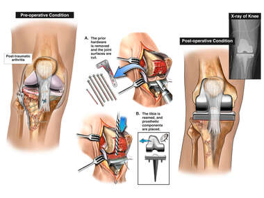 Post-traumatic Right Knee Arthritis with Total Knee Replacement Procedure
